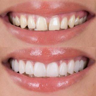 Faccette dentali? C'è il dentista in Albania!