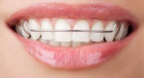 Come correggere i denti storti con gli apparecchi fissi e mobili