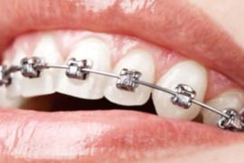 Ortodonzia e ortodontista: cos'è e di cosa si occupa.