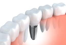 Nuove tecnologie per la cura dei denti