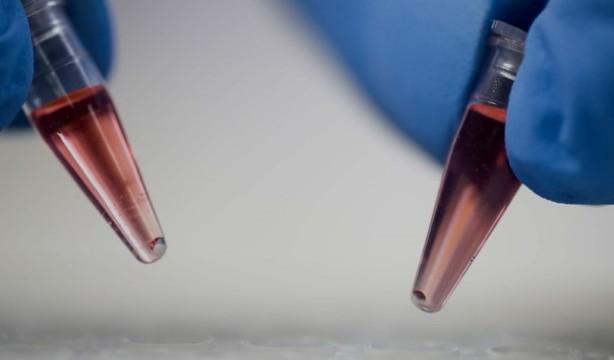 Tamponi salivari, le farmacie italiane prese d'assalto